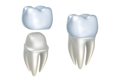 3D render of dental crowns and tooth, isolated on white