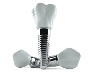 Dental implant isolated on white background. 3d illustration