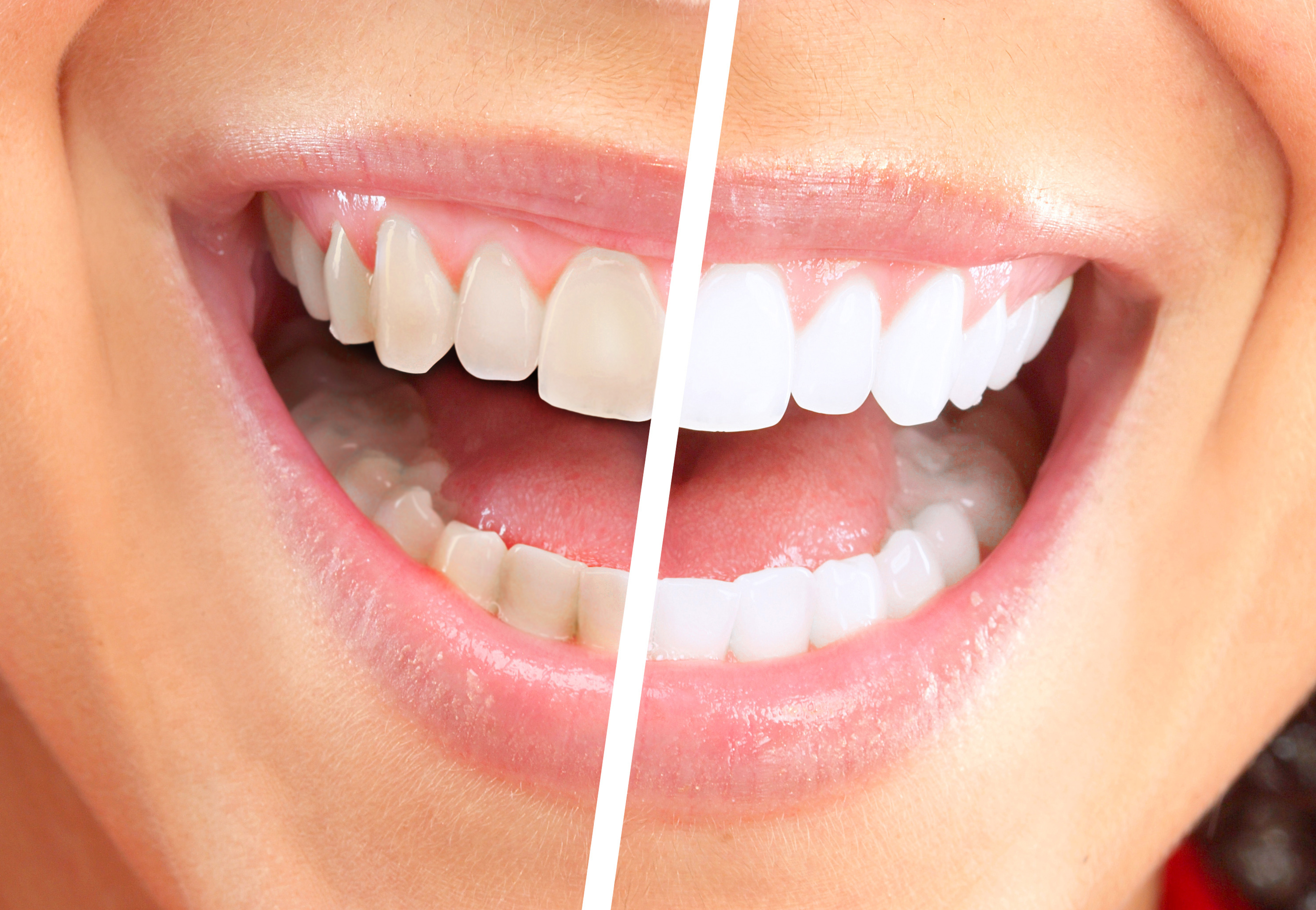 Teeth Whitening in Brooklyn - In Office & Take Home