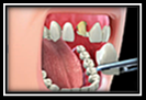 Dental Procedures Video