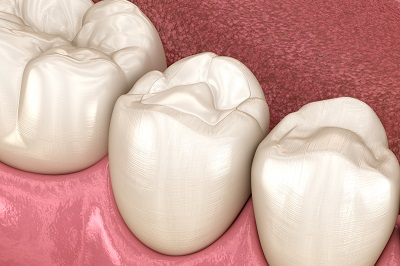 3d render of teeth with composite white filling