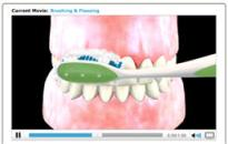 Image of a sample dental video