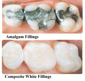 composite fillings in temecula and murrieta