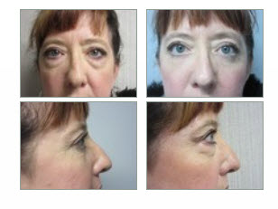 blepharoplasty surgery in St Clair Shores Michigan
