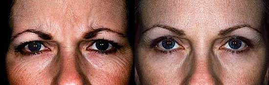 botox injections treatment