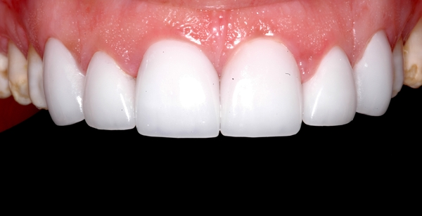 Porcelain Veneers in Scottsdale