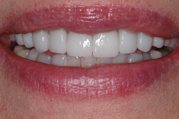 veneers by Scottsdale prosthodontist Dr. Michael L. Bleeker