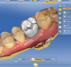 Intra-Oral Scanning in Scottsdale
