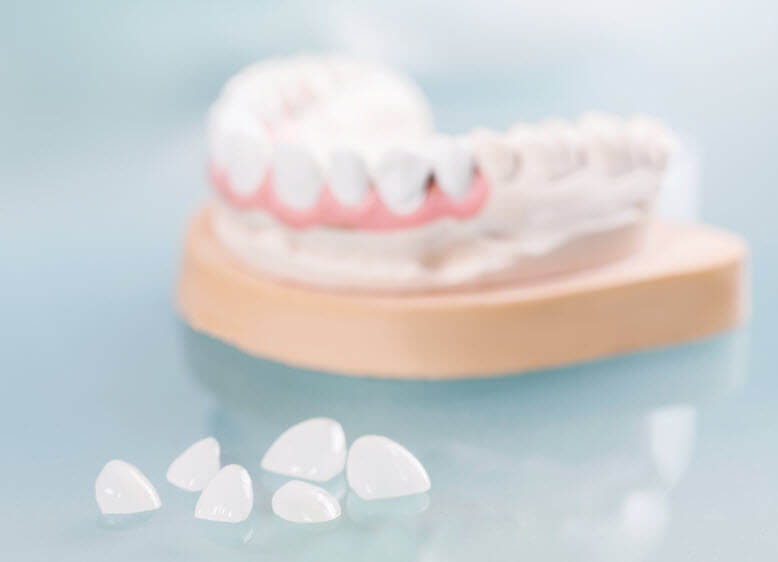 Veneers in Scottsdale, AZ. Prosthodontist Dr. Bleeker provides porcelain veneers