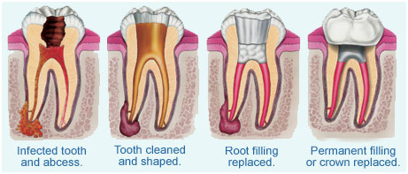 dr. derek fika provides consultation to see if root canal treatment is the right option for you. contact our edmonton dental office today!