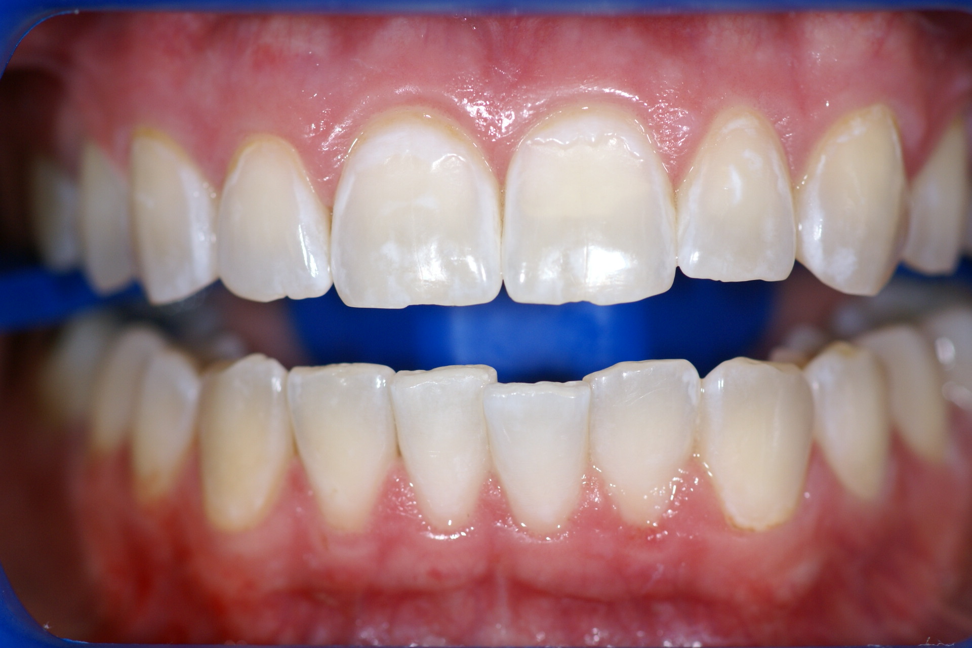 before and after zoom teeth whitening