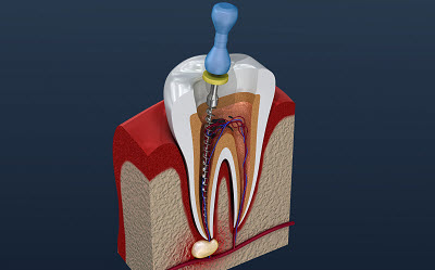 root canal treatment to relieve tooth pain and infection