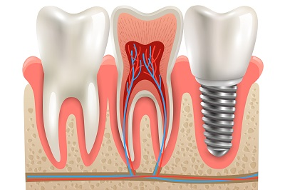 Dental implant and real tooth anatomy illustration