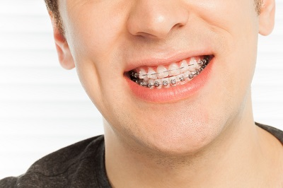 close up of smiling man with braces