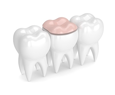 3d render of teeth with dental onlay filling over white background