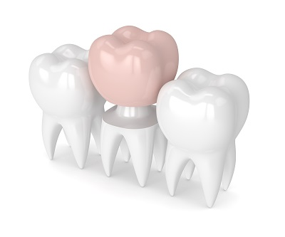 3d render of teeth with dental crown restoration over white background