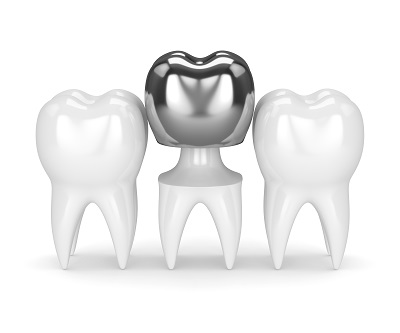 3d render of teeth with dental amalgam crown over white background