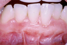Gum Reconstruction by Dr. Peter Cabrera