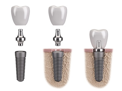 3D illustration of Tooth human implant