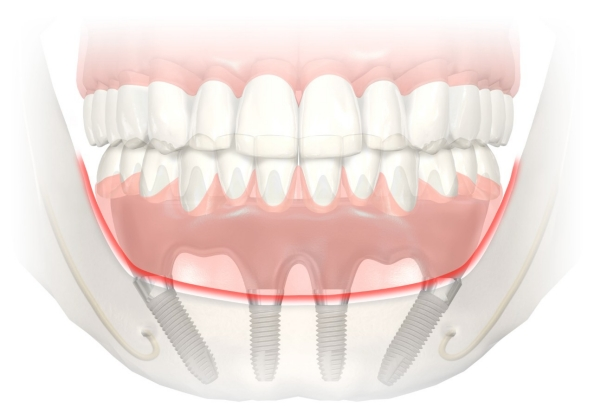 All on Four Implant Denture