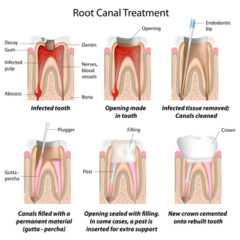 root canal therapies