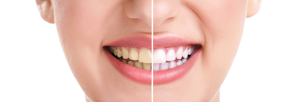 zoom whitened teeth