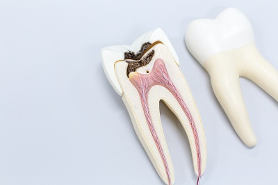 Image of tooth model showing an infected pulp