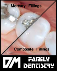 Composit fillings Casa Grande AZ