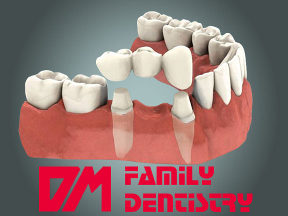 Dental Bridges Casa Grande AZ