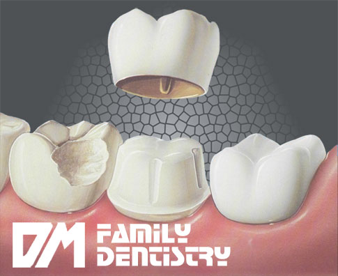 Dental Crown Casa Grande AZ