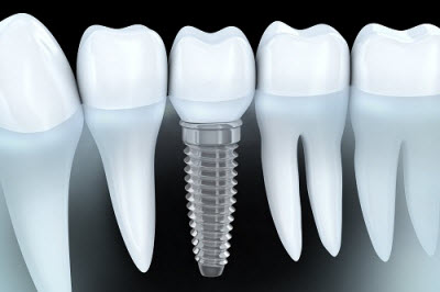 3d render of implant supported crown