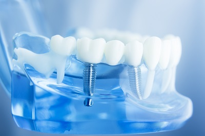 dental model with dental implant