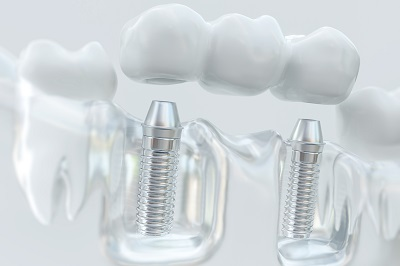 dental bridge on dental model with implants