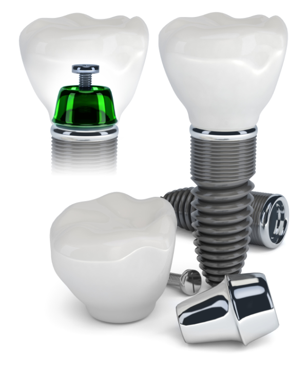 Single Tooth & Full Plate Dental Implants in Cynthiana