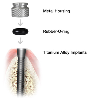 Mini Dental Implants in Charlottesville