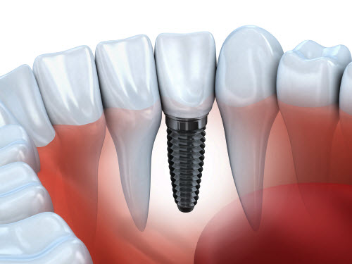 Dental Implant graphic showing how it sits in gums