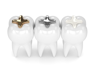 3d render of teeth with gold, amalgam and composite fillings