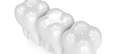 3d render of teeth with dental composite filling over white background