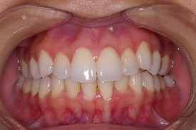 rutherford Invisalign Dentist