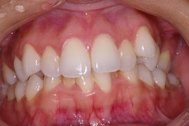Rutherford invisalign treatment