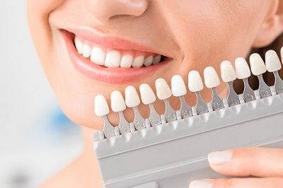 Beautiful smile from Fresno Cosmetic Dentist