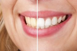 Teeth Whitening by Simi Valley Cosmetic Dentists