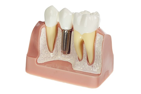 Dental Implants in Simi Valley - Restorations