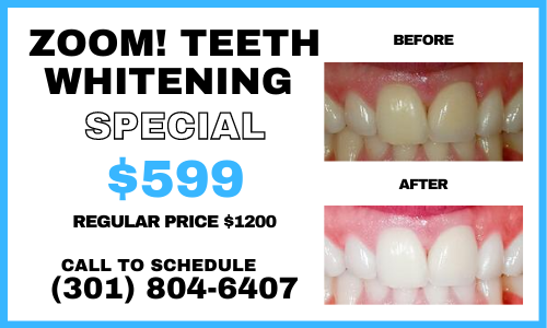 august zoom! teeth whitening special potomac dental clinic rockville md