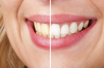 Teeth-Whitening-Springfield-IL