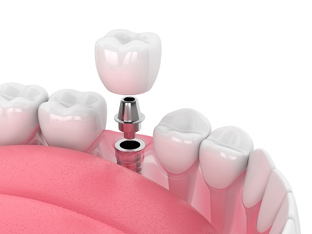 the process of getting dental implants