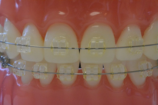 Clear Braces in Towson dental office