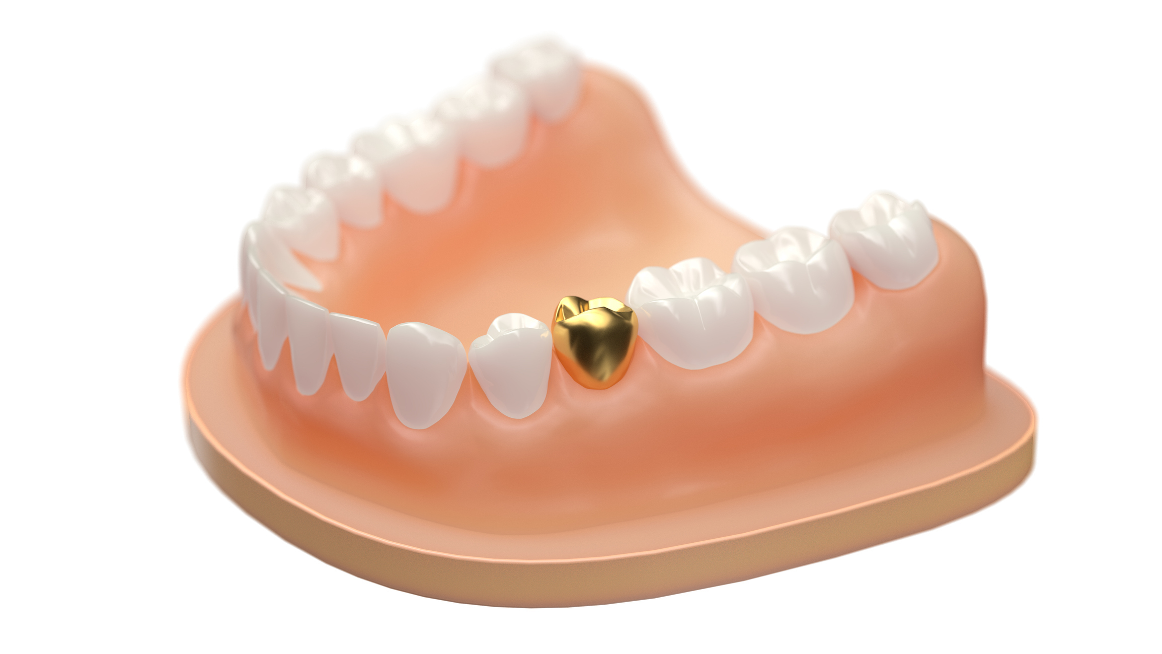 Gold Dental Crown - Scotch Plains, NJ - Dentalcare Associates