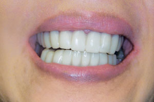 Cosmetic Restoration Dentistry in Scotch Plains NJ - Dentalcare Associates