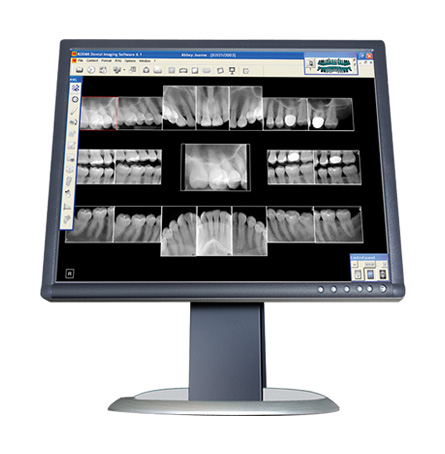 Digital X-Rays in Scotch Plains NJ - Dentalcare Associates